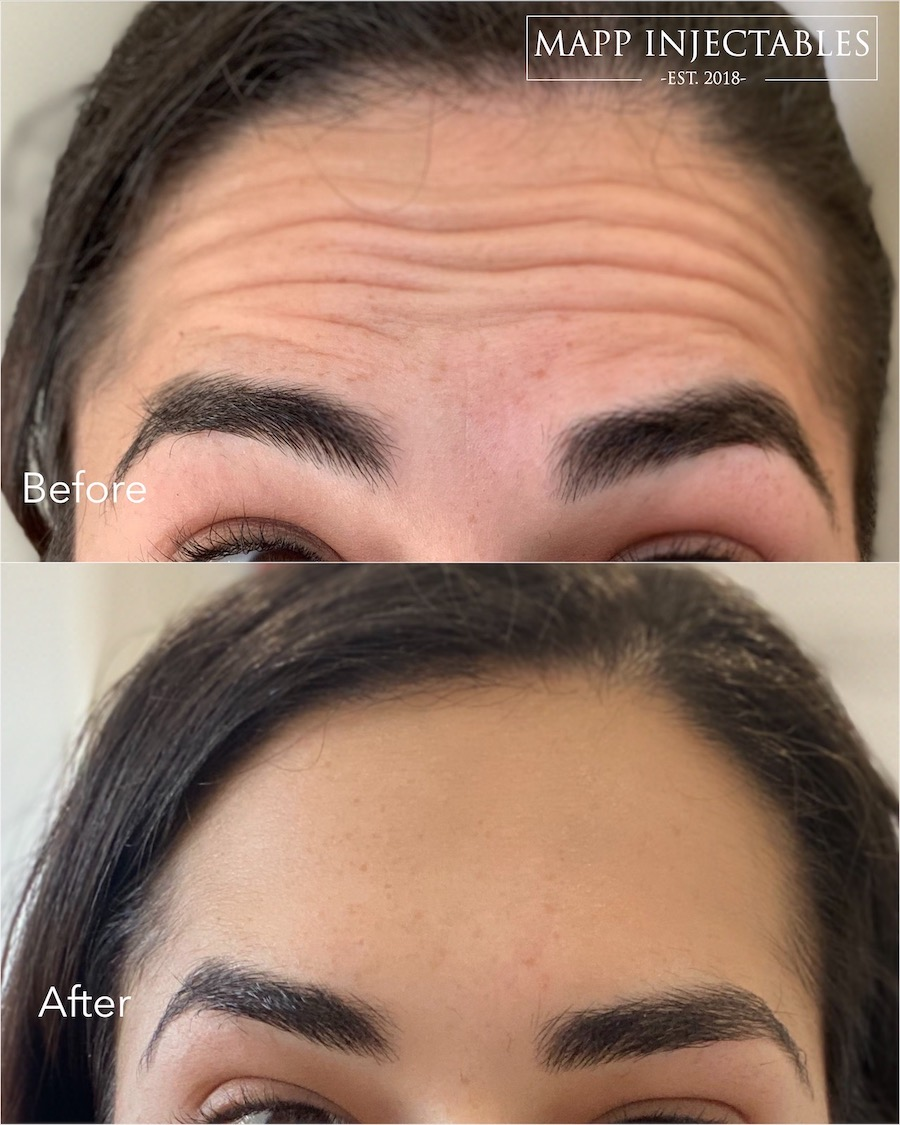 forehead botox sutherland