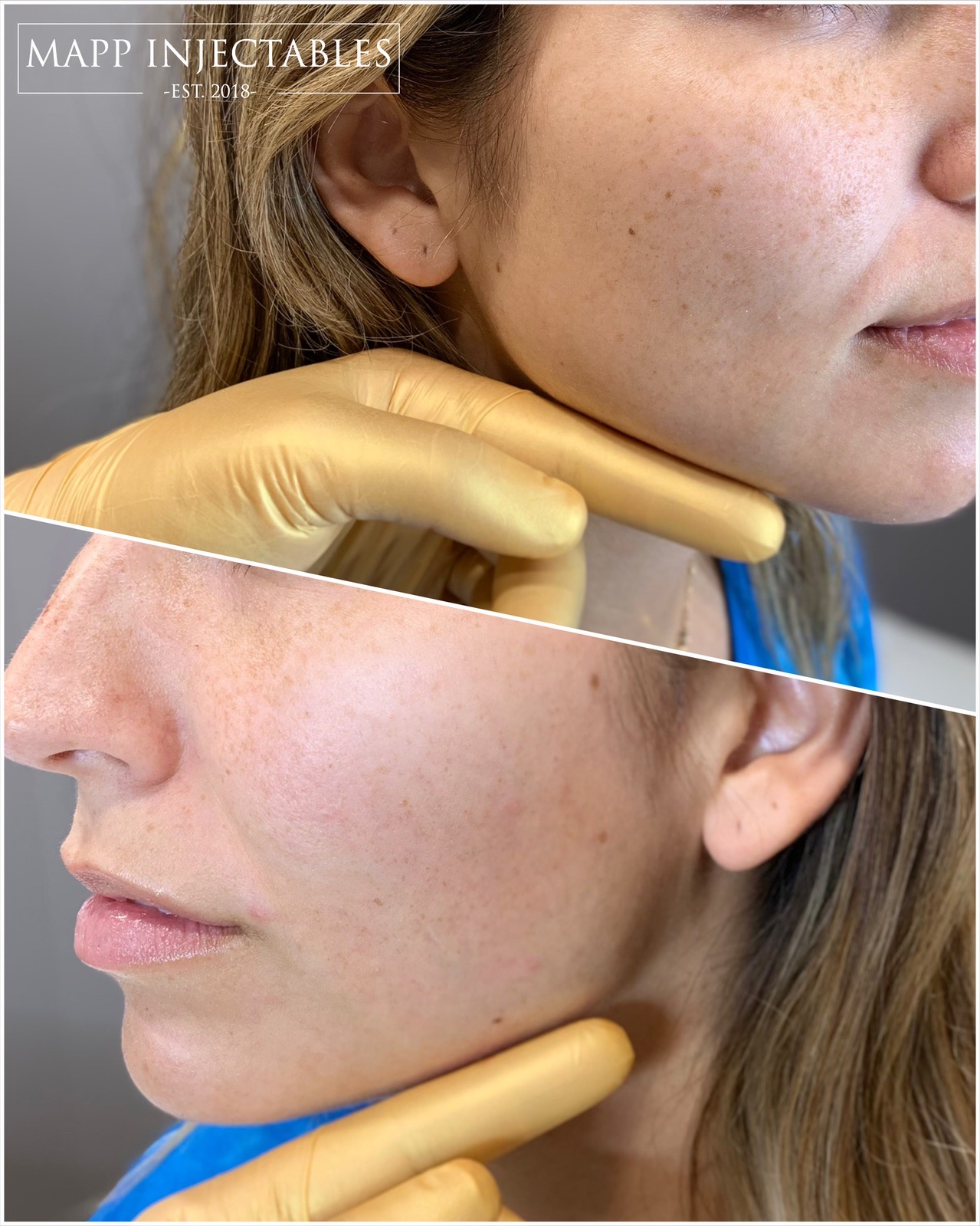 Jawfiller sydney cosmetic