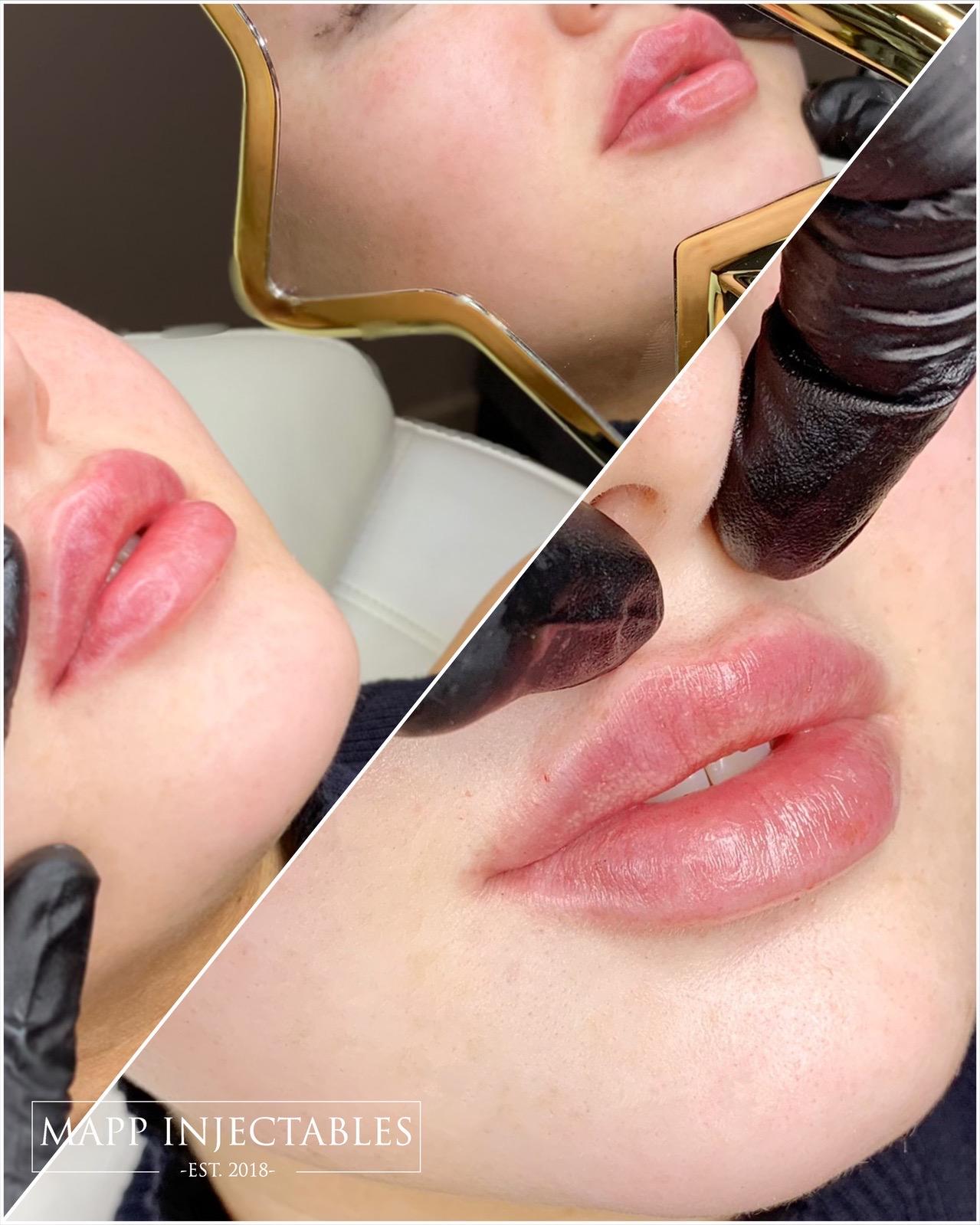 russian lip technique.jpg
